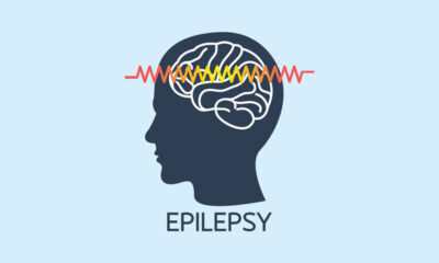 Medicinal cannabis in Scotland allowed for treating epilepsy